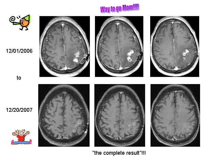 MRI scans before and after Avastin and CPT-11